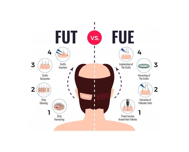 Quelle Difference Entre Greffe De FUE Et Greffe De Cheveux FUT?