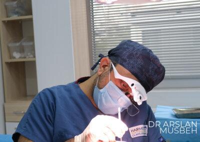 chirurgien d'implant capillaire