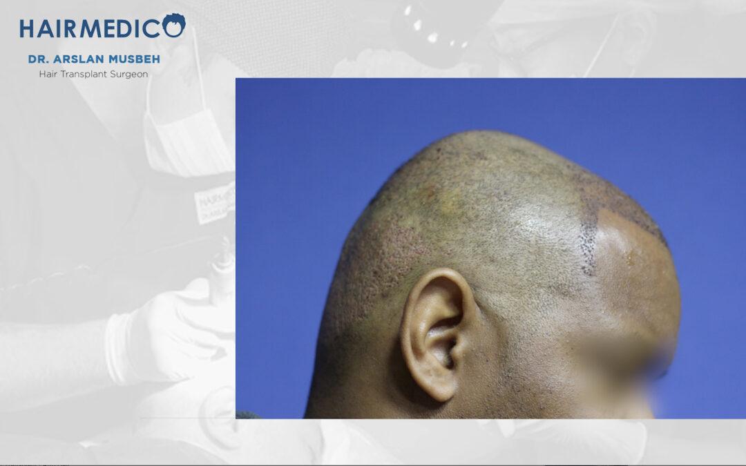 Zone donneuse aprés greffe de cheveux