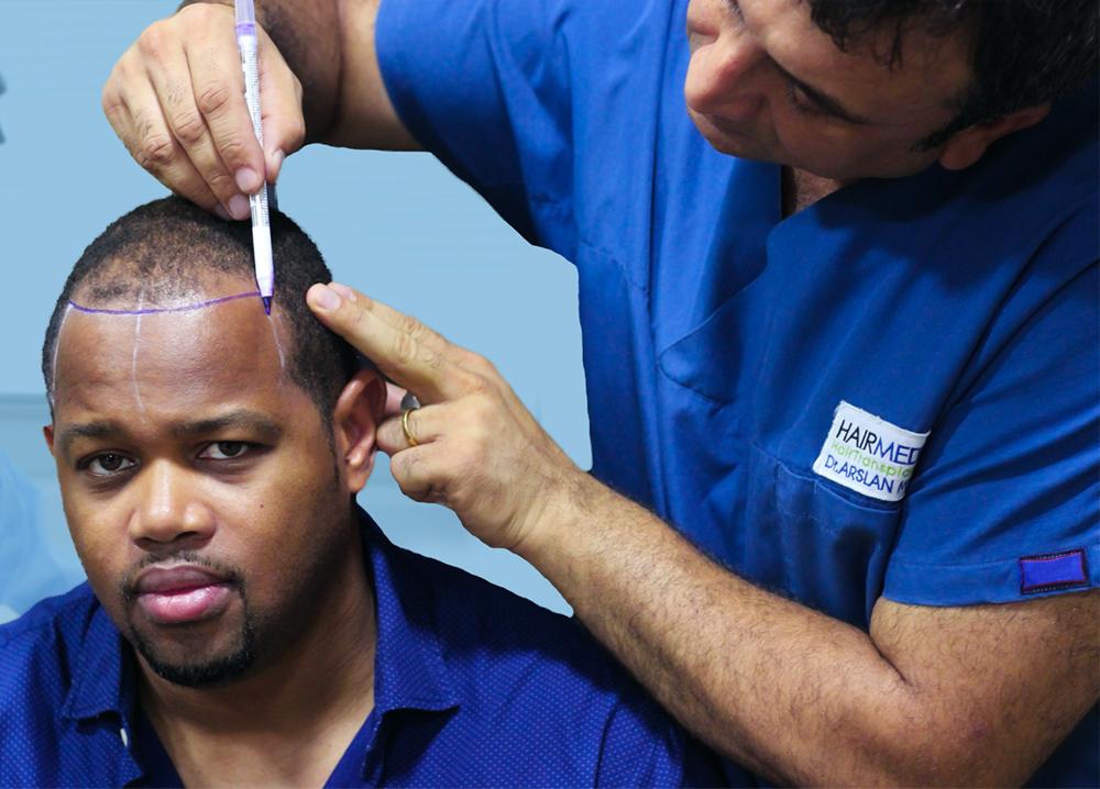 AFRO Hair transplant copy